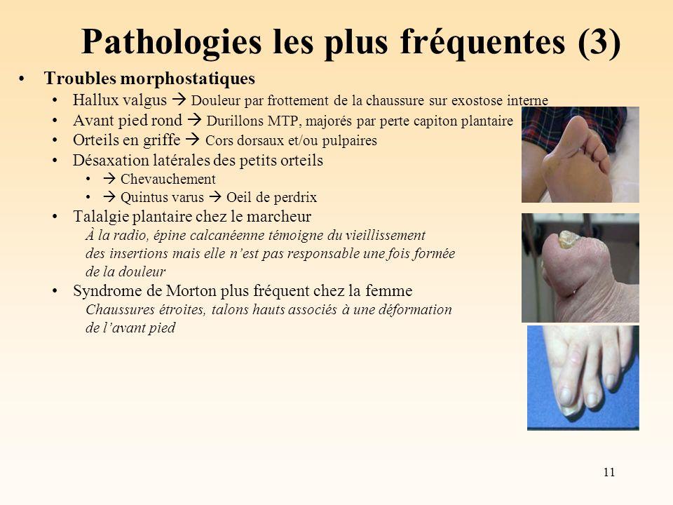 11 Pathologies les plus fréquentes (3) Troubles morphostatiques Hallux valgus Douleur par frottement de la chaussure sur exostose interne Avant pied r