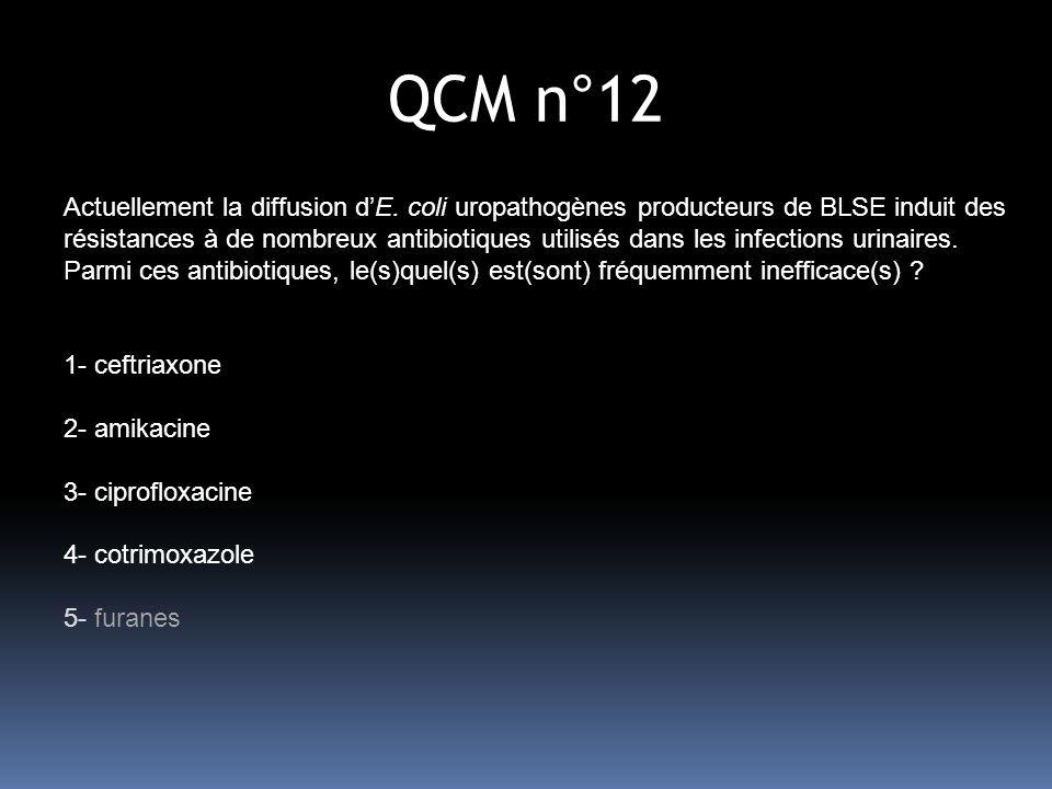 QCM n°12 Actuellement la diffusion dE.