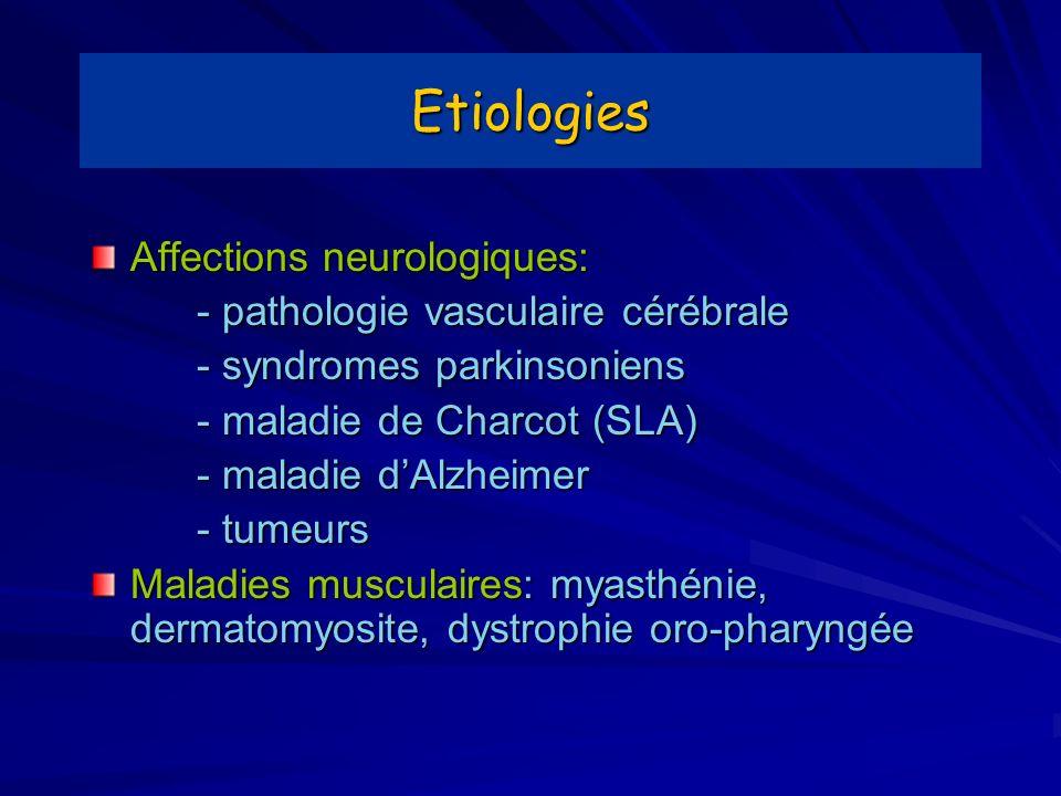 Etiologies Affections neurologiques: - pathologie vasculaire cérébrale - syndromes parkinsoniens - maladie de Charcot (SLA) - maladie dAlzheimer - tum