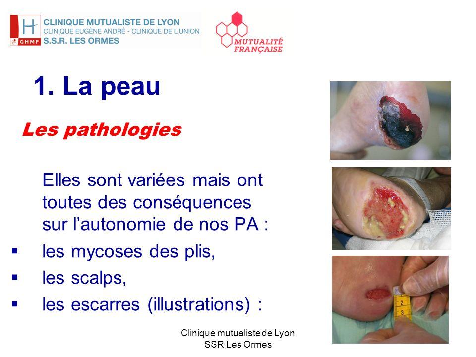 1. La peau Elles sont variées mais ont toutes des conséquences sur lautonomie de nos PA : les mycoses des plis, les scalps, les escarres (illustration