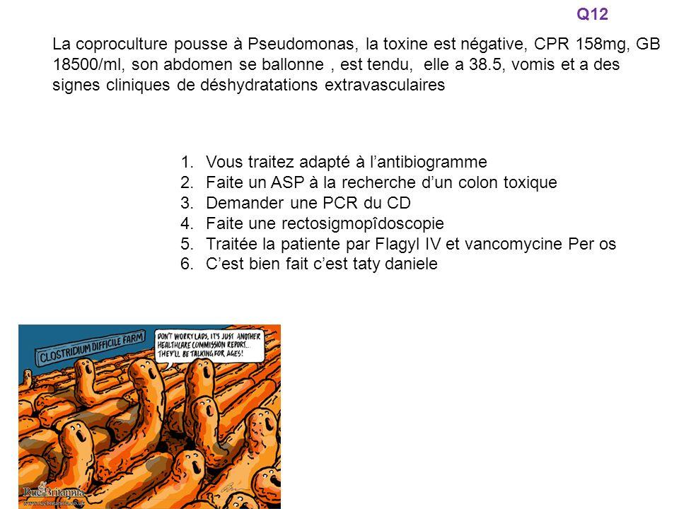 La coproculture pousse à Pseudomonas, la toxine est négative, CPR 158mg, GB 18500/ml, son abdomen se ballonne, est tendu, elle a 38.5, vomis et a des