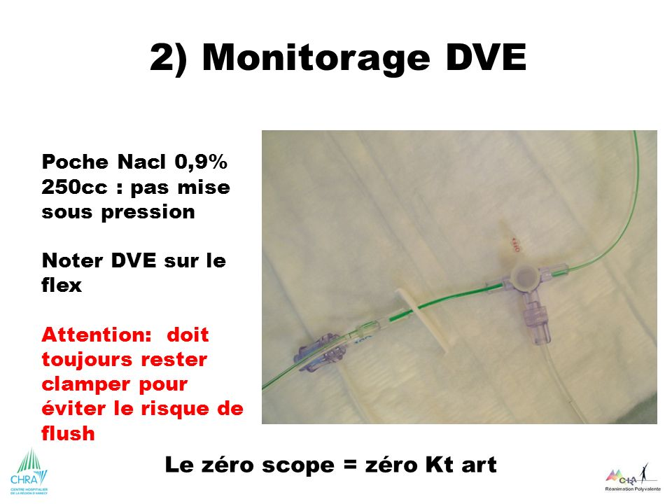 Poche Nacl 0,9% 250cc : pas mise sous pression Noter DVE sur le flex Attention: doit toujours rester clamper pour éviter le risque de flush 2) Monitor
