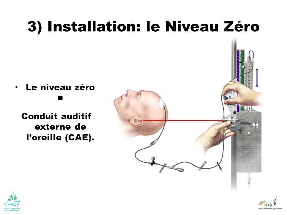 3) Installation: le Niveau Zéro Le niveau zéro = Conduit auditif externe de loreille (CAE).