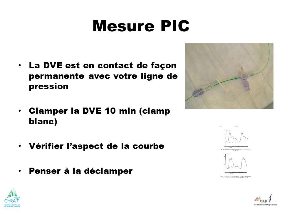 Mesure PIC La DVE est en contact de façon permanente avec votre ligne de pression Clamper la DVE 10 min (clamp blanc) Vérifier laspect de la courbe Pe