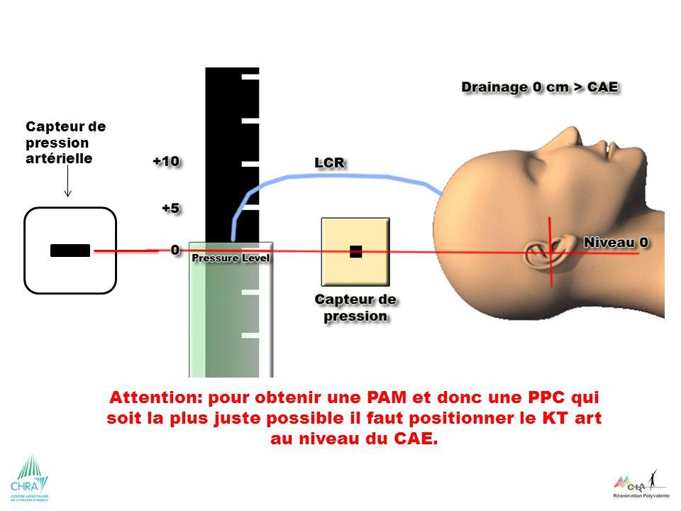 Attention: pour obtenir une PAM et donc une PPC qui soit la plus juste possible il faut positionner le KT art au niveau du CAE. Capteur de pression ar