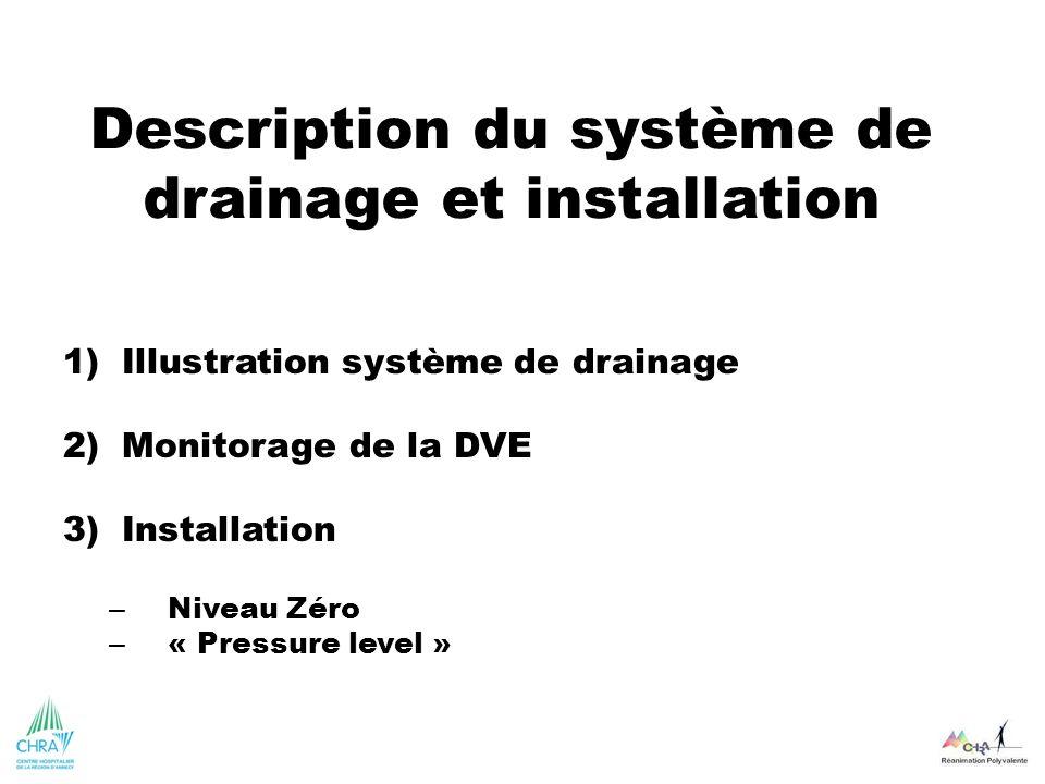 Description du système de drainage et installation 1)Illustration système de drainage 2)Monitorage de la DVE 3)Installation – Niveau Zéro – « Pressure