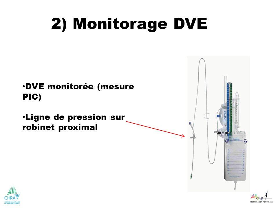 2) Monitorage DVE DVE monitorée (mesure PIC) Ligne de pression sur robinet proximal