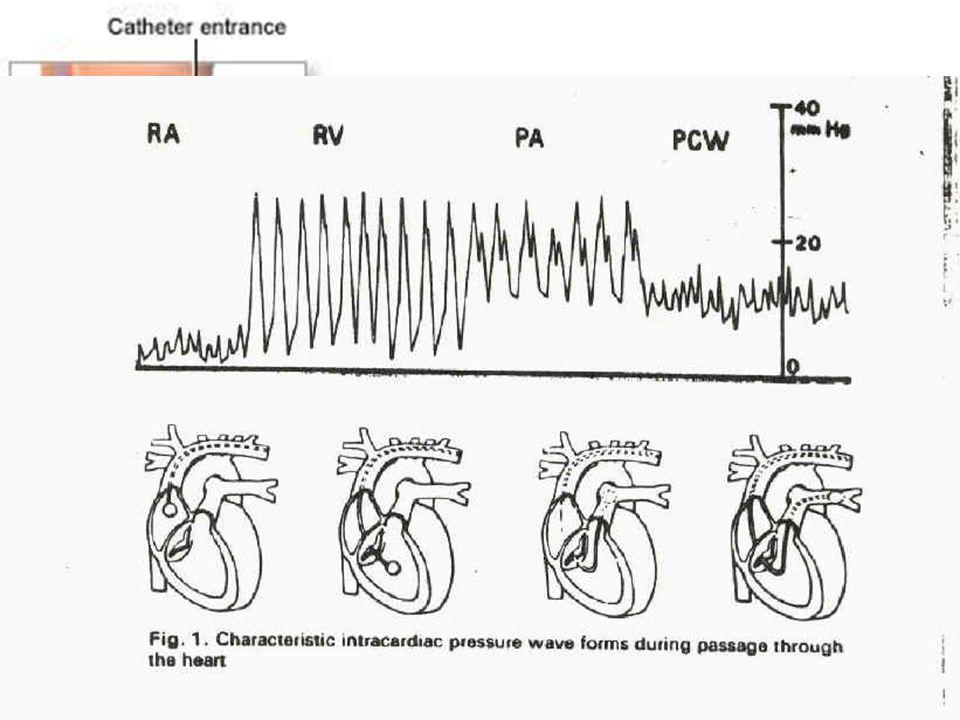 Swan - Ganz Mise en place : Après ECG et bilan de coagulation Voies dabord : jugulaire, sous clavière, fémorale Nécessité de brancher les câbles de pr