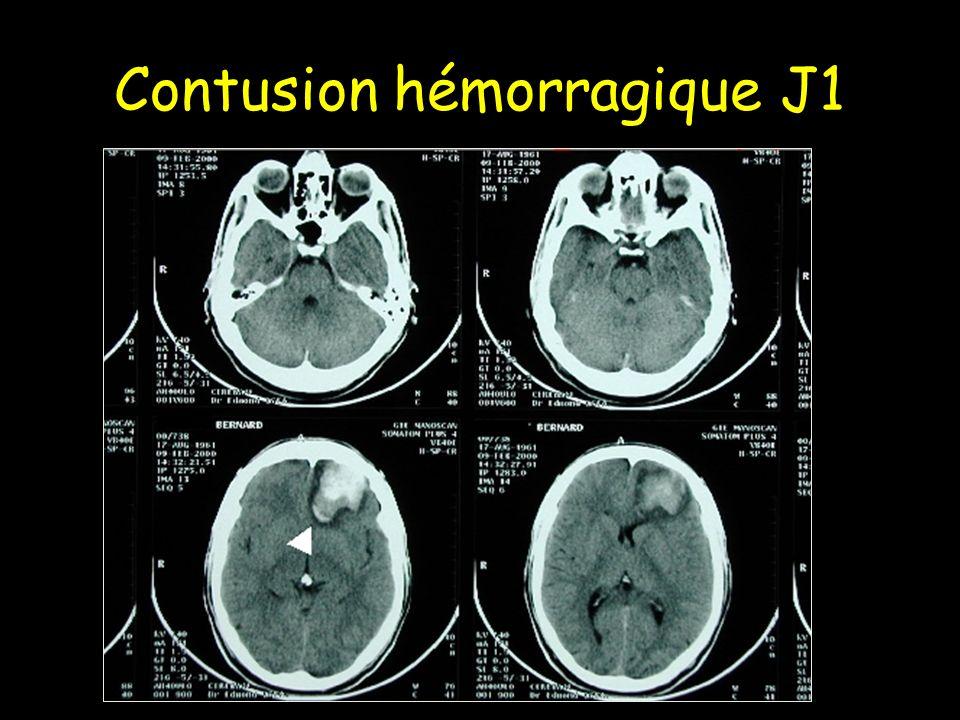 Contusion hémorragique J1
