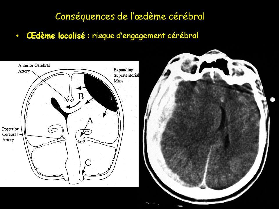 Œdème localisé : risque dengagement cérébral Conséquences de lœdème cérébral