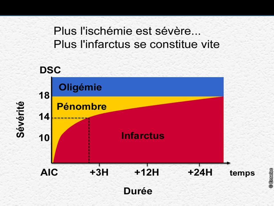 DSC 50 40 30 20 10 Biochimie Fonction Structure Synthèses protéiques lactate glutamate ATP K+ Ca++ infarctus altérations EEG ondes lentes EEG plat ml/min/100g