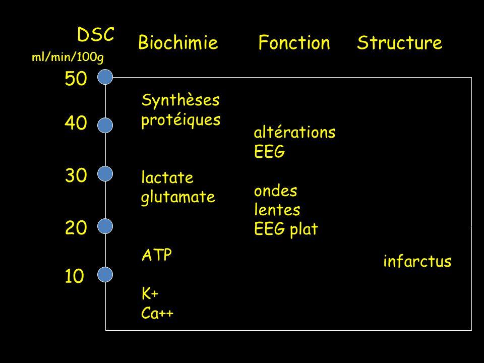 DSC 50 40 30 20 10 Biochimie Fonction Structure Synthèses protéiques lactate glutamate ATP K+ Ca++ infarctus altérations EEG ondes lentes EEG plat ml/