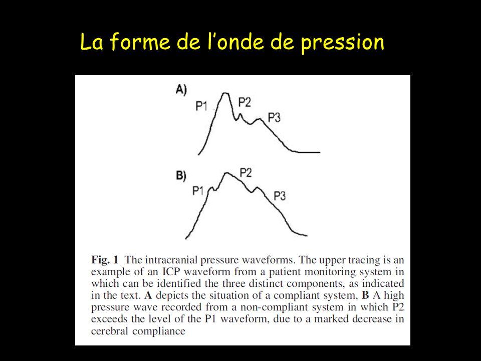 La forme de londe de pression