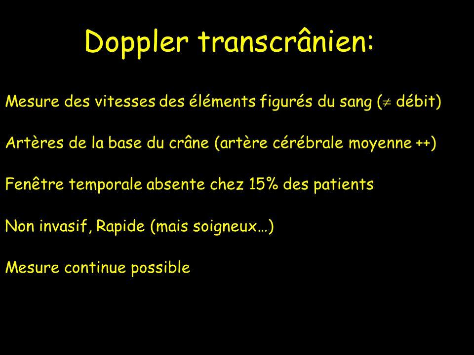 Doppler transcrânien: Mesure des vitesses des éléments figurés du sang ( débit) Artères de la base du crâne (artère cérébrale moyenne ++) Fenêtre temp