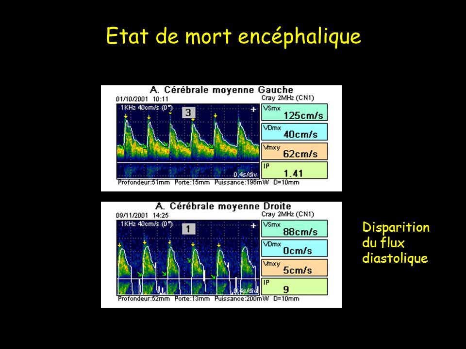 Etat de mort encéphalique Disparition du flux diastolique