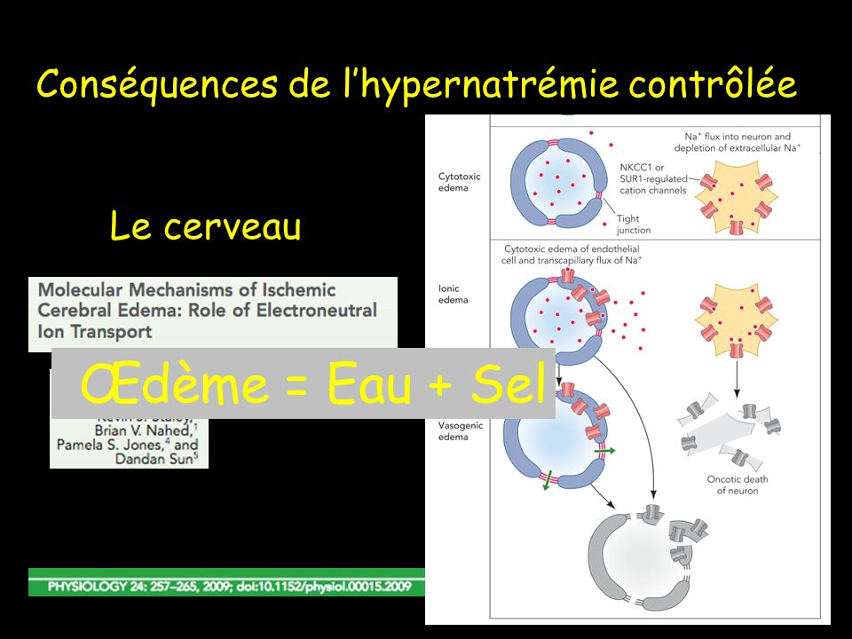 Conséquences de lhypernatrémie contrôlée Le cerveau Œdème = Eau + Sel