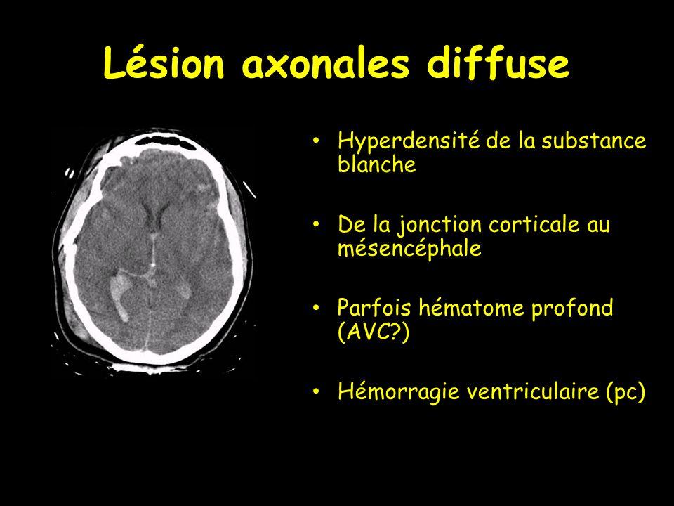 Lésion axonales diffuse Hyperdensité de la substance blanche De la jonction corticale au mésencéphale Parfois hématome profond (AVC?) Hémorragie ventr