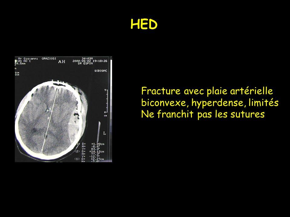 Fracture avec plaie artérielle biconvexe, hyperdense, limités Ne franchit pas les sutures HED