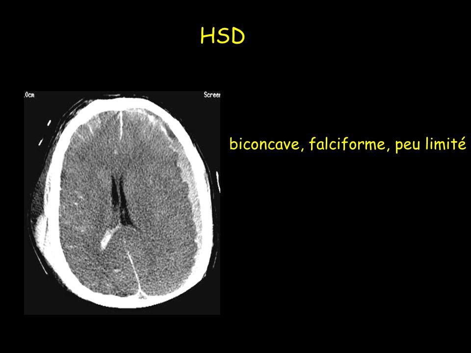 biconcave, falciforme, peu limité HSD