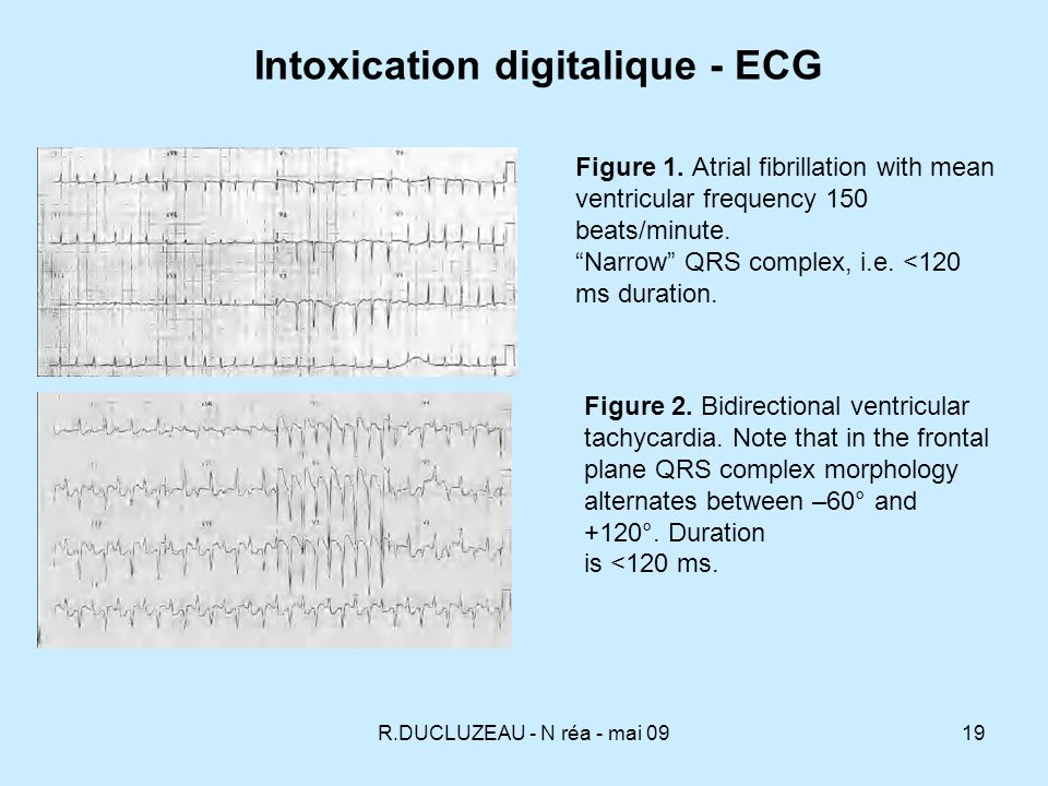 R.DUCLUZEAU - N réa - mai 0919 Figure 1. Atrial fibrillation with mean ventricular frequency 150 beats/minute. Narrow QRS complex, i.e. <120 ms durati