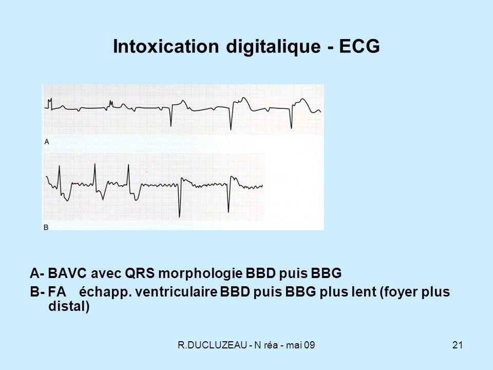 R.DUCLUZEAU - N réa - mai 0922 Intoxication digitalique - ECG Digoxine 5,2 Kaliémie 10
