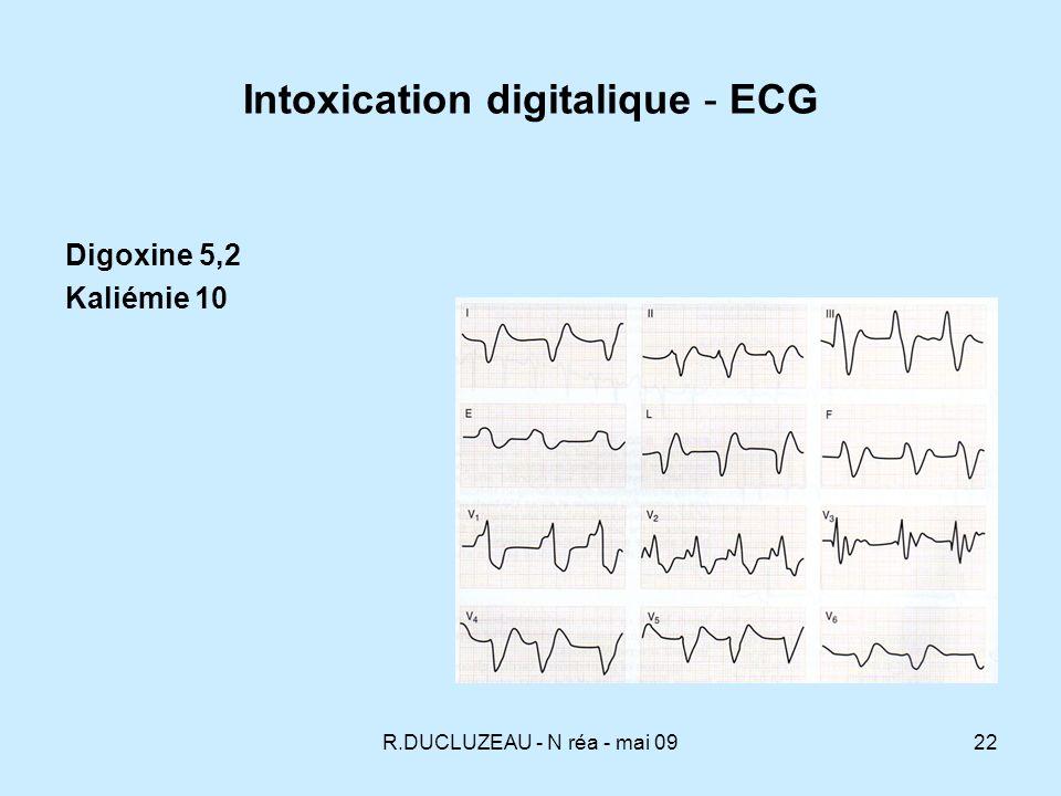 R.DUCLUZEAU - N réa - mai 0923 Intoxication digitalique - ECG Intoxication 24,8 mg Digoxine FA bigéminisme R/T Tachycardie atriale BAV