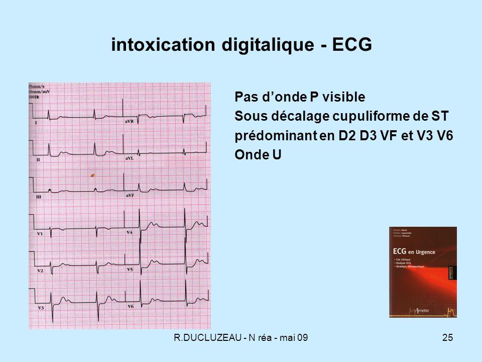 R.DUCLUZEAU - N réa - mai 0926 Intoxication digitalique - ECG K : 8,7 En cours de perfusion de Fab 2h après perfusion de Fab