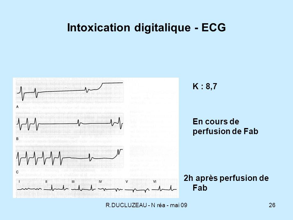 les Effets de la Digitaline sur un ECG
