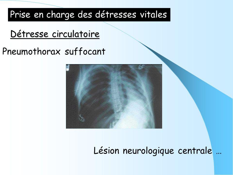 Prise en charge des détresses vitales Détresse circulatoire Pneumothorax suffocant Lésion neurologique centrale …