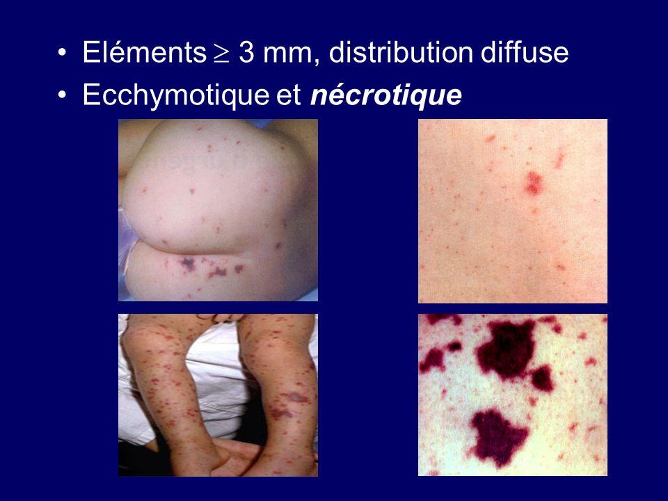Eléments 3 mm, distribution diffuse Ecchymotique et nécrotique