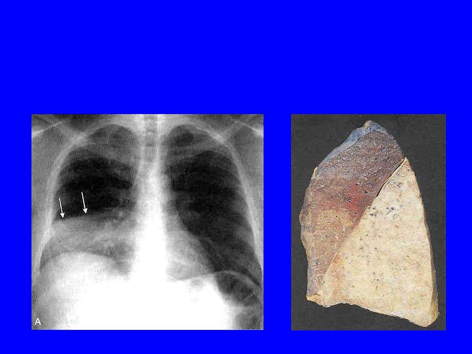 Diagnostic Fièvre, douleur abdominale, défense Échographie; Scanner +++ Avis chirurgical