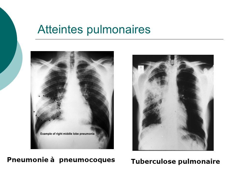 Atteintes pulmonaires Pneumonie à pneumocoques Tuberculose pulmonaire
