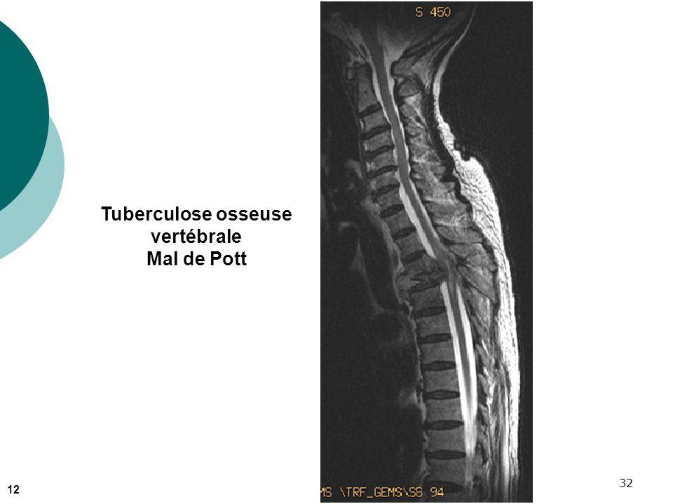 32 Tuberculose osseuse vertébrale Mal de Pott 12