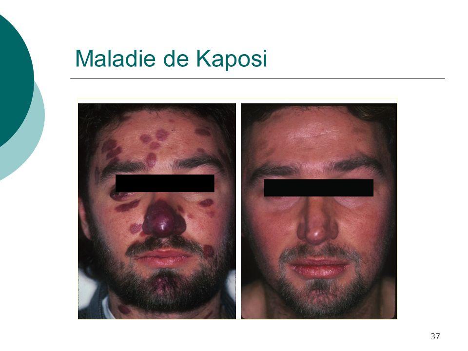 37 Maladie de Kaposi