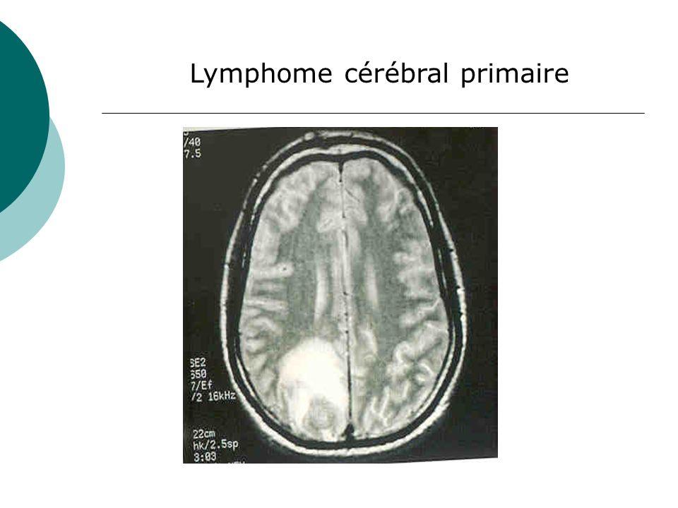 Lymphome cérébral primaire