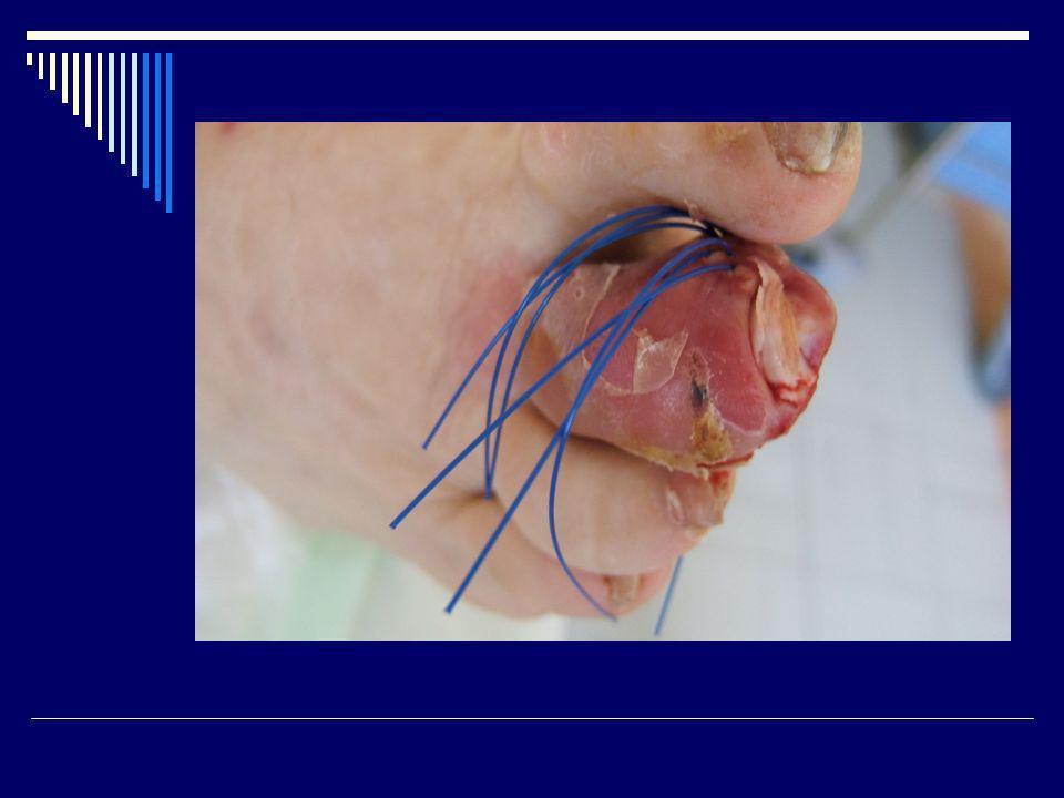 AB ayant une longue ½ vie 1 seule injection Ceftriaxone Ertapeneme Téicoplanine Daptomycine