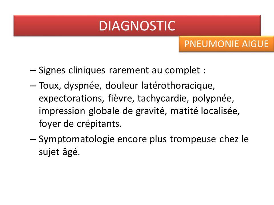 DIAGNOSTIC PNEUMONIE AIGUE