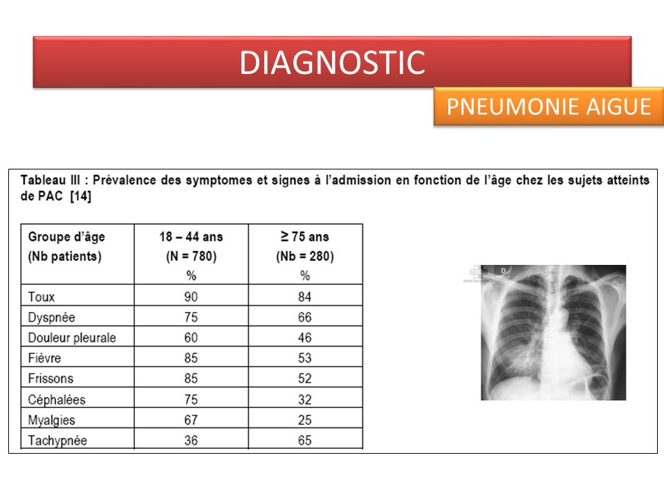 DIAGNOSTIC PNEUMONIE AIGUE