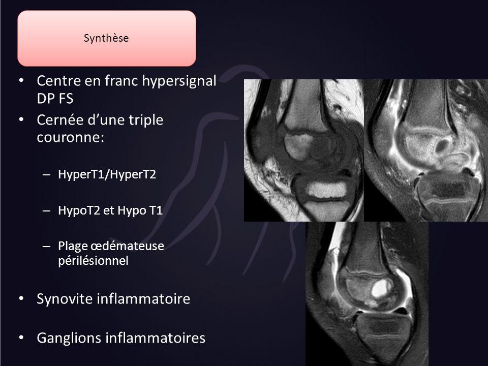 Centre en franc hypersignal DP FS Cernée dune triple couronne: – HyperT1/HyperT2 – HypoT2 et Hypo T1 – Plage œdémateuse périlésionnel Synovite inflamm