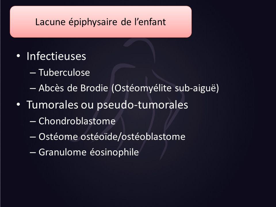 Infectieuses – Tuberculose – Abcès de Brodie (Ostéomyélite sub-aiguë) Tumorales ou pseudo-tumorales – Chondroblastome – Ostéome ostéoïde/ostéoblastome