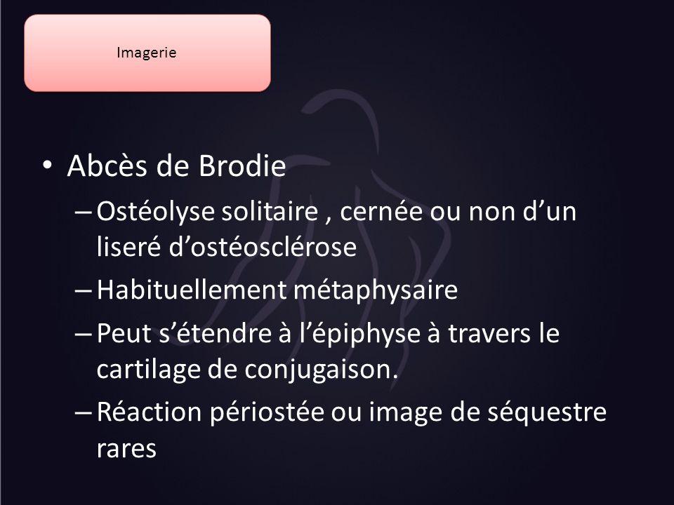 Imagerie Abcès de Brodie – Ostéolyse solitaire, cernée ou non dun liseré dostéosclérose – Habituellement métaphysaire – Peut sétendre à lépiphyse à tr