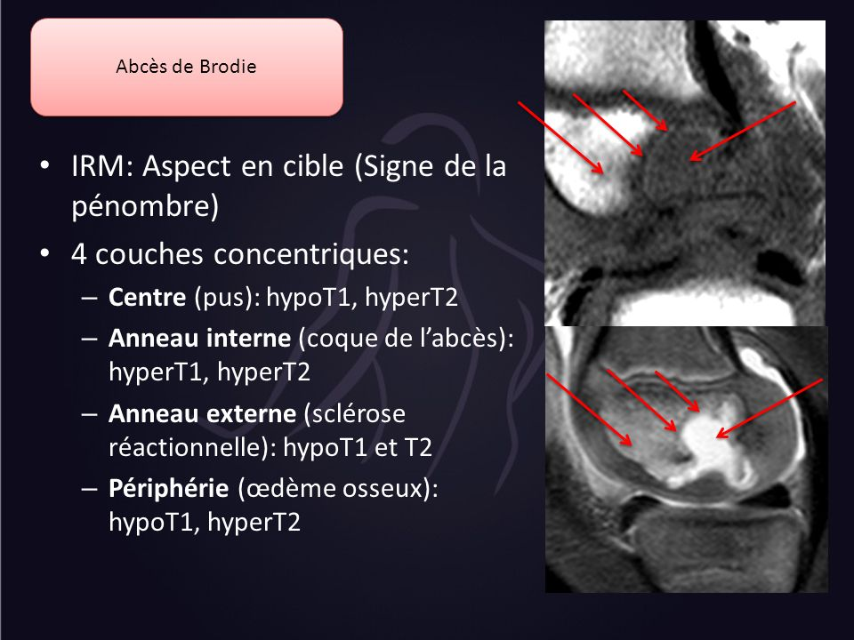 Abcès de Brodie IRM: Aspect en cible (Signe de la pénombre) 4 couches concentriques: – Centre (pus): hypoT1, hyperT2 – Anneau interne (coque de labcès