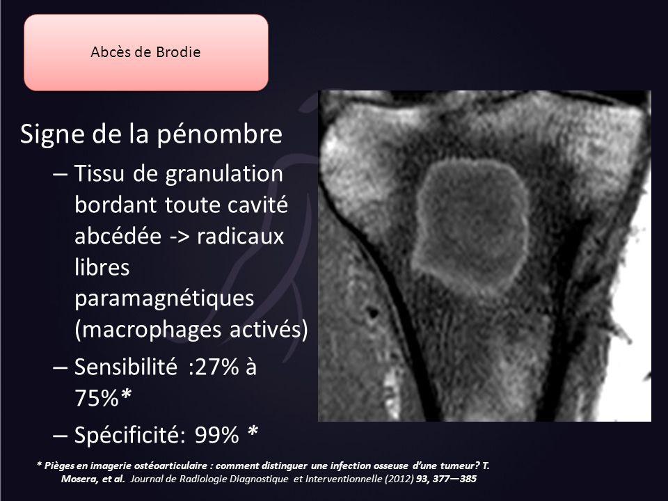 Abcès de Brodie Signe de la pénombre – Tissu de granulation bordant toute cavité abcédée -> radicaux libres paramagnétiques (macrophages activés) – Se