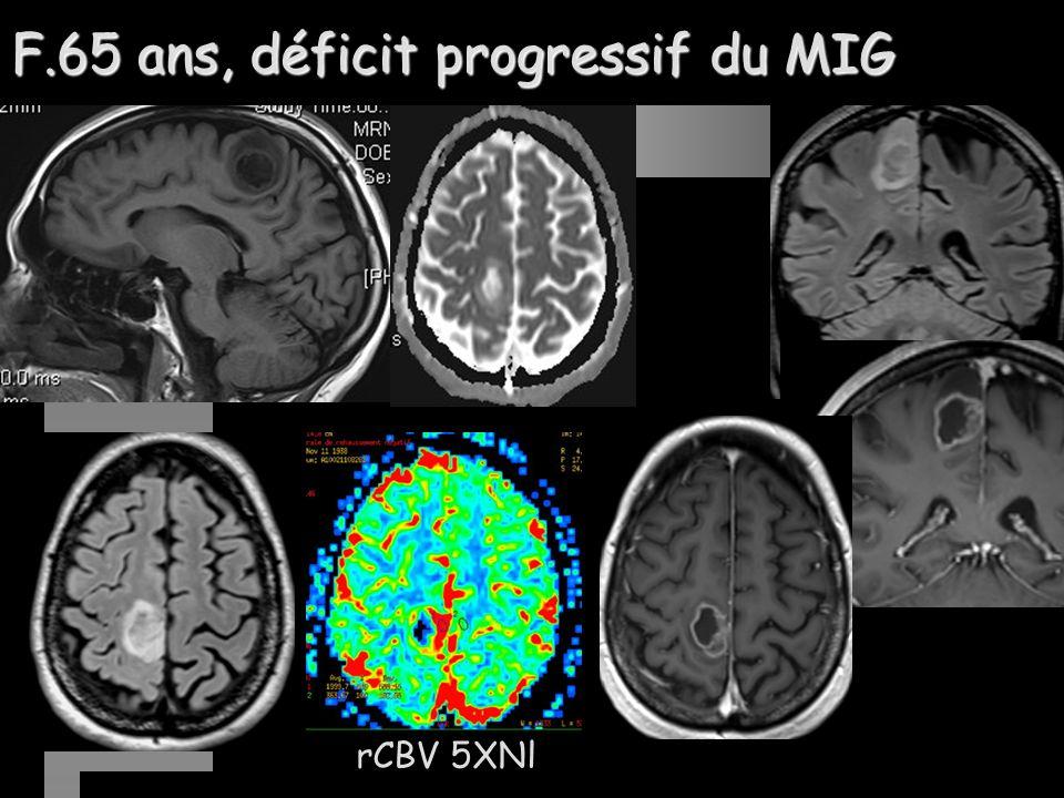 F.65 ans, déficit progressif du MIG rCBV 5XNl