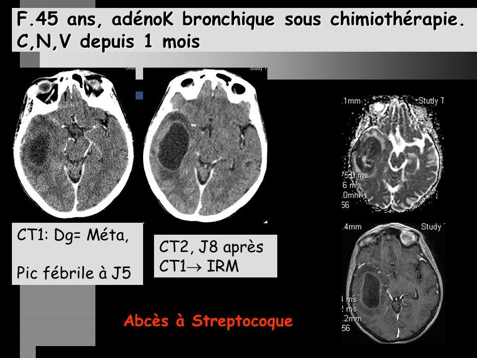 F.45 ans, adénoK bronchique sous chimiothérapie.
