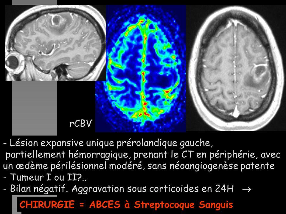 - Lésion expansive unique prérolandique gauche, partiellement hémorragique, prenant le CT en périphérie, avec un œdème périlésionnel modéré, sans néoangiogenèse patente - Tumeur I ou II?..