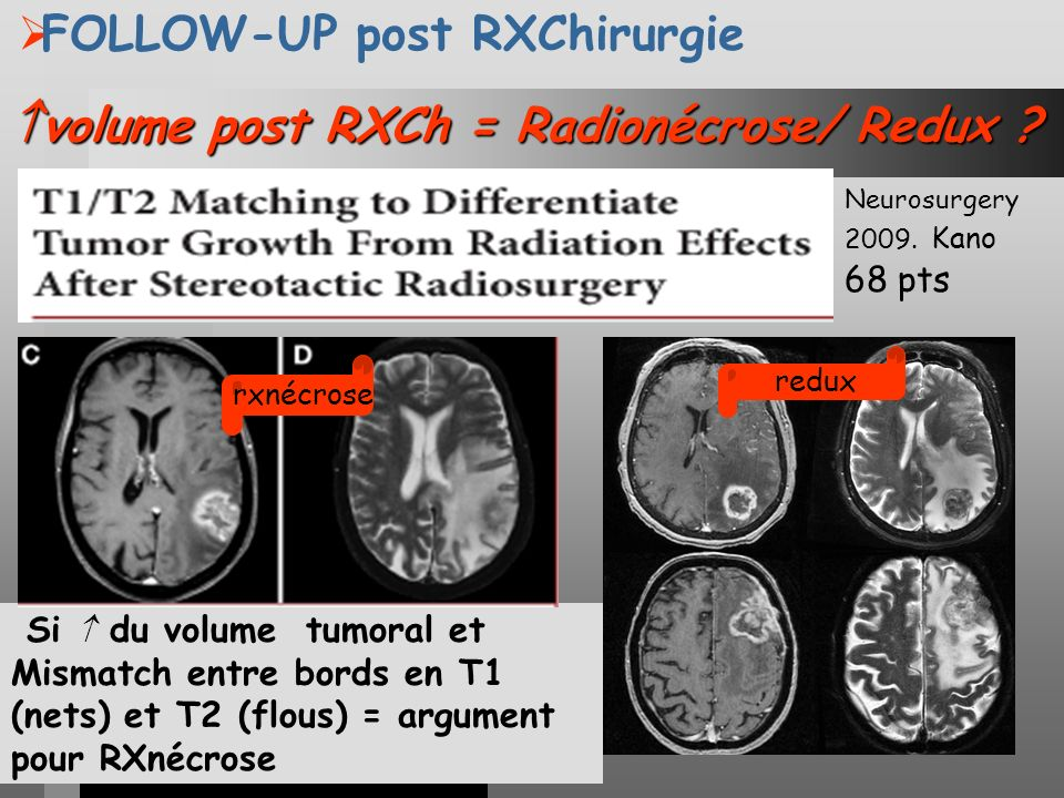 volume post RXCh = Radionécrose/ Redux ? volume post RXCh = Radionécrose/ Redux ? FOLLOW-UP post RXChirurgie Si du volume tumoral et Mismatch entre bo