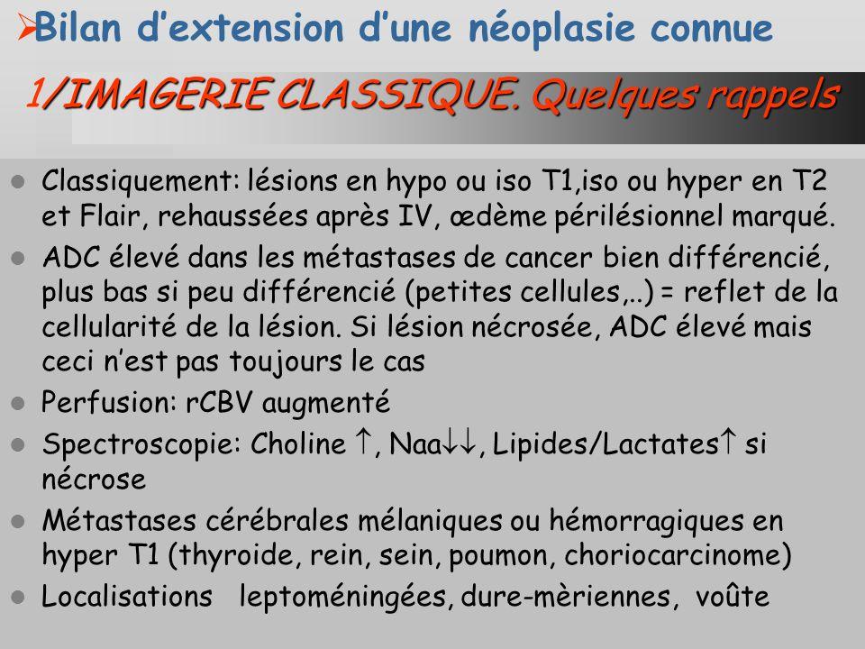 Mr.F.70 ans, Carcinome épidermoide bronchique Mars2011 mai2011 aout2011 nov2011 dec2011 Mr.