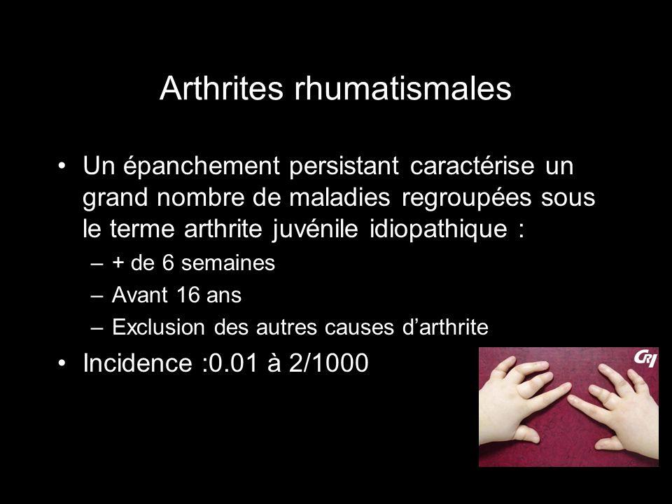 Arthrites rhumatismales Un épanchement persistant caractérise un grand nombre de maladies regroupées sous le terme arthrite juvénile idiopathique : –+