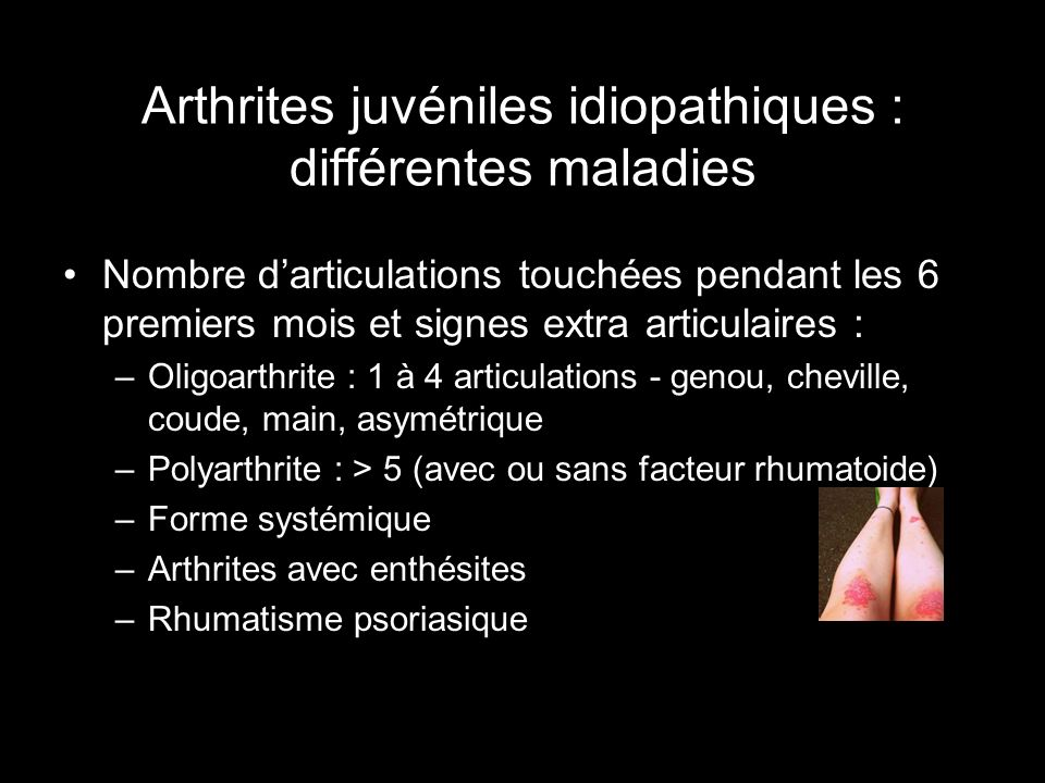 Arthrites juvéniles idiopathiques : différentes maladies Nombre darticulations touchées pendant les 6 premiers mois et signes extra articulaires : –Ol